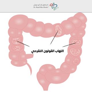 الدكتور رائد- التهاب القولون التقرحي