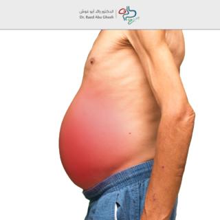 الدكتور رائد - أسباب حبن البطن