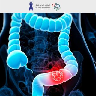 الدكتور رائد - برنامج الكشف المبكر عن سرطان القولون