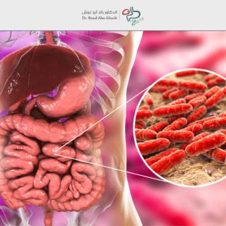 الدكتور رائد - بكتيريا الأمعاء النافعة