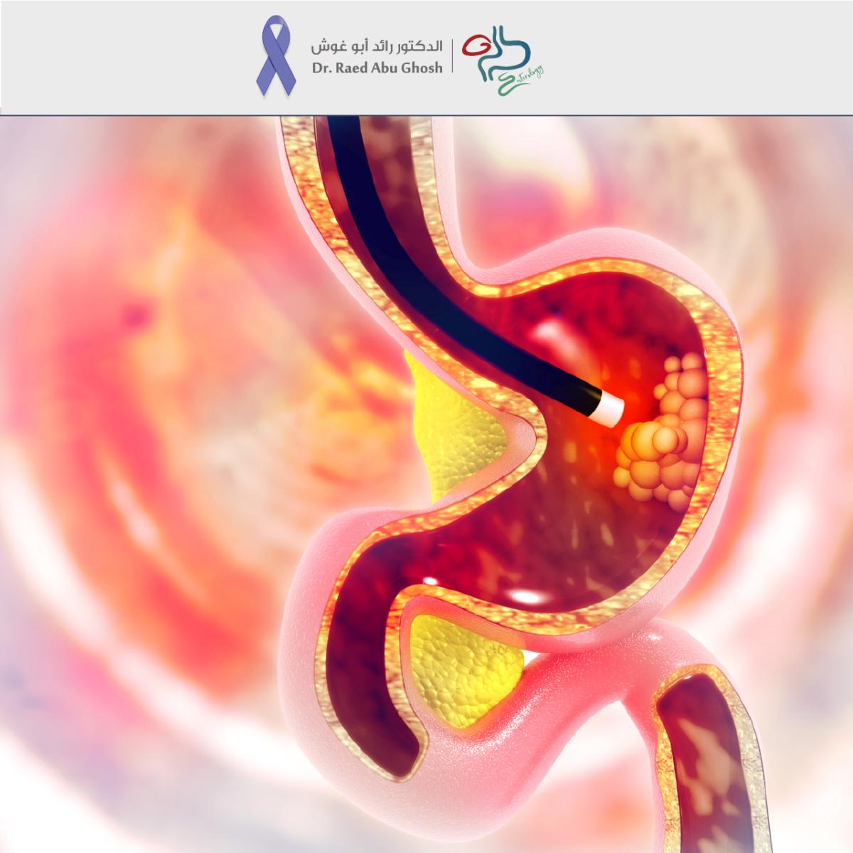 -رائد-سرطان-المعدة-1-1200x1200.png