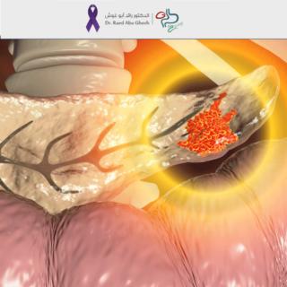 الدكتور-رائد-معلومات-عن-سرطان-البنكرياس