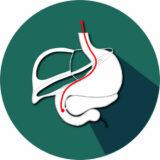 الدكتور رائد أبو غوش - تصوير الكبد و الأقنية الصفراوية ERCP